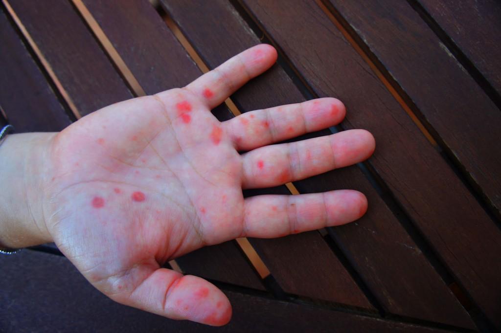 Hólyagokat okoz a kéz-láb-száj betegség