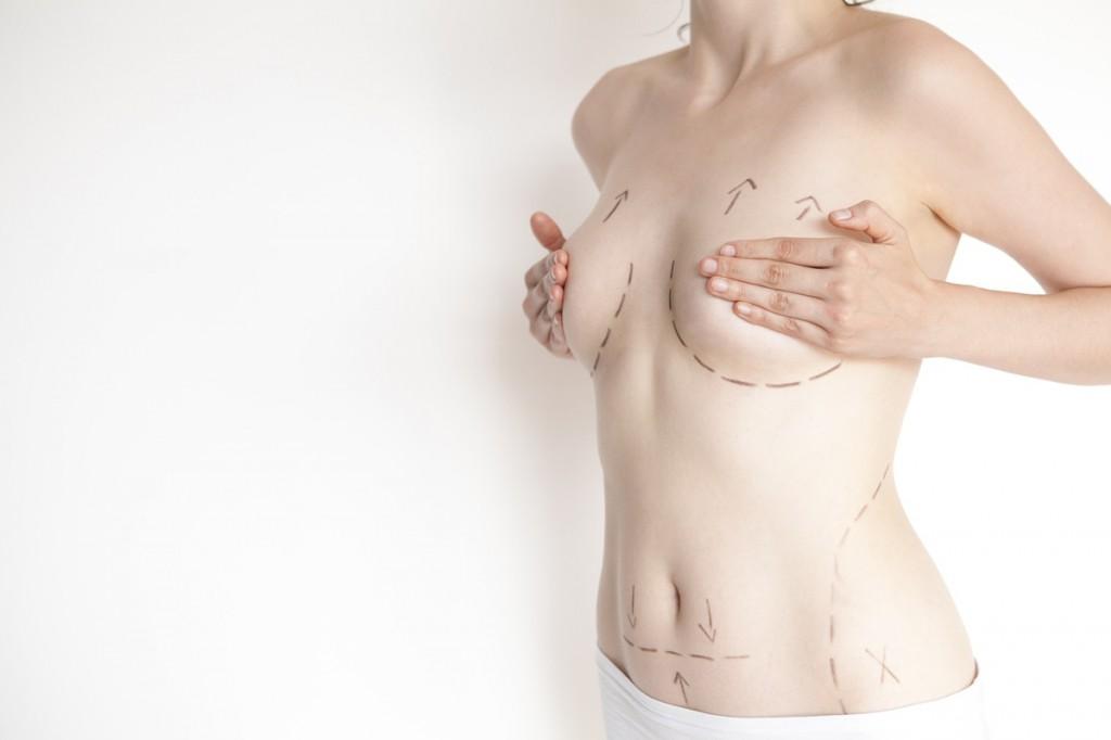 plasztikai műtétek, mellműtét