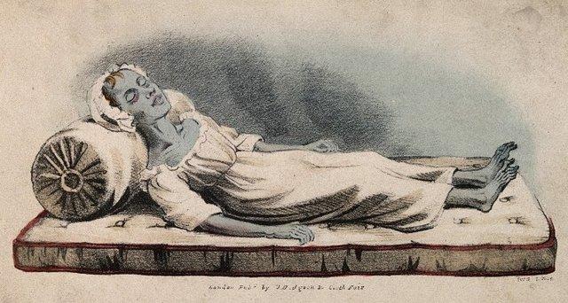 Egy kolerás halálos ágyán