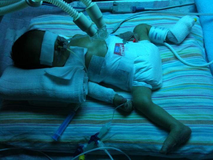 A kis Máté nyelőcső nélkül született - már rögtön születése után műteni kellett